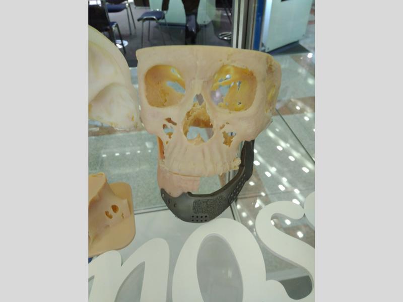 Индивидуальные костные имплантаты